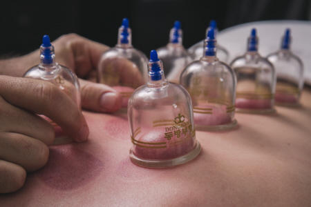 Cupping Massage Sacramento